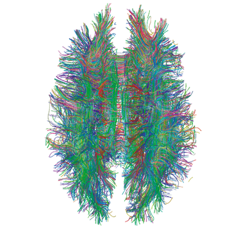 White Matter Connections in the Brain